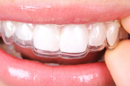 Removable and Bonded Retainers | Ealing Dental Specialists