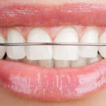 Ealing Dental Specialists - Hawley Retainers
