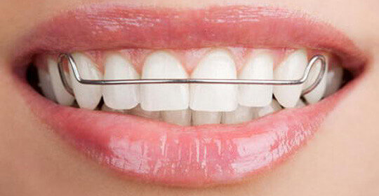 Removable and Bonded Retainers - Ealing Dental Specialists