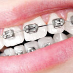 Ealing Dental Specialists - Metal Fixed Braces